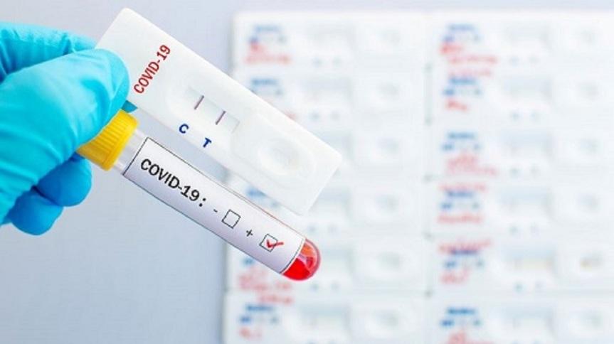 Διενέργεια  RAPID  TEST  στην Κοινότητα Καρυάς  την Πέμπτη 18Μάρτη
